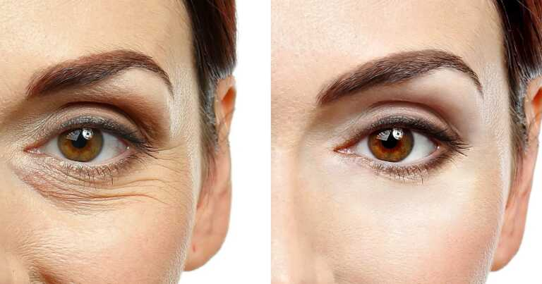 Start Your Day by Sending Wrinkles Away With This Caffeinated Eye Cream
